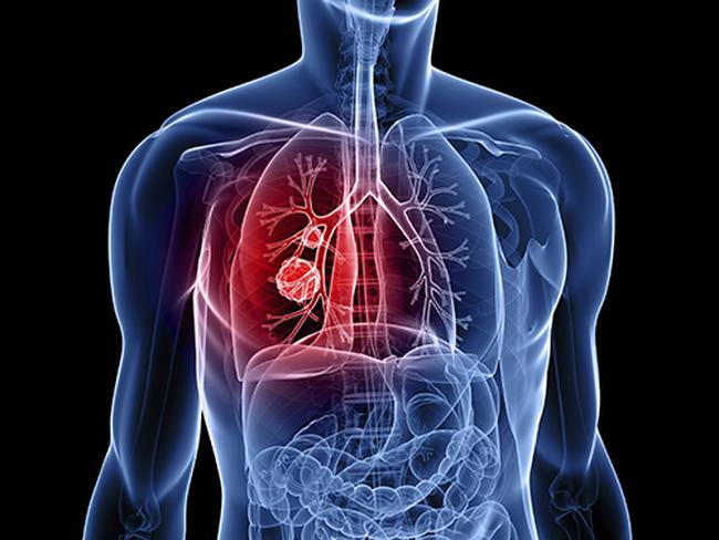 cách chữa bệnh ung thư phổi