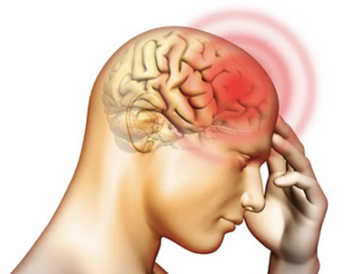 Những Điều Cần Lưu Ý Về Bệnh Viêm Màng Não Và Cách Điều Trị Bệnh Viêm Màng Não